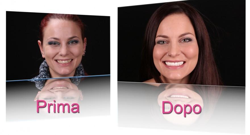 estetica professionale faccette dentali