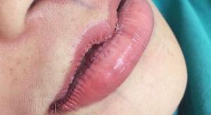 riduzione labbra2